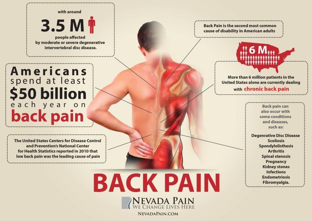 【論文紹介】腰痛患者に対する重みを利用した静的ストレッチの効果